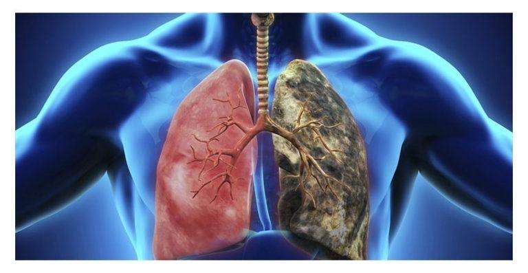 E-cigarette : Effets secondaires sur la santé